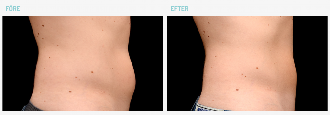coolsculpting-abd