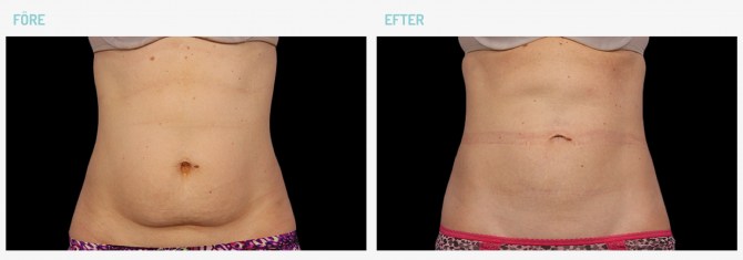 coolsculpting-before-after-2