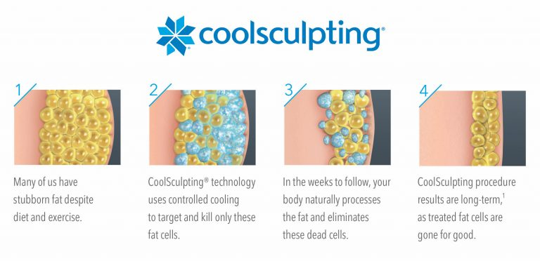 illustration-how-coolsculpting-works-medium
