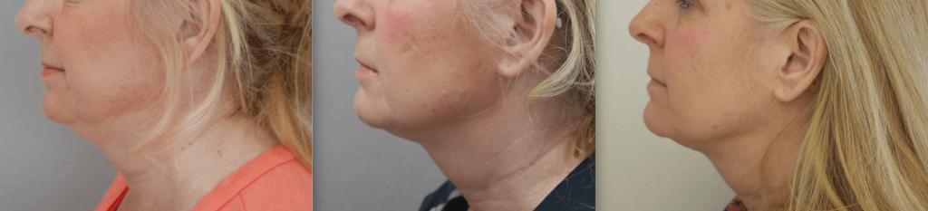 Belkyra behandling före och efter bild